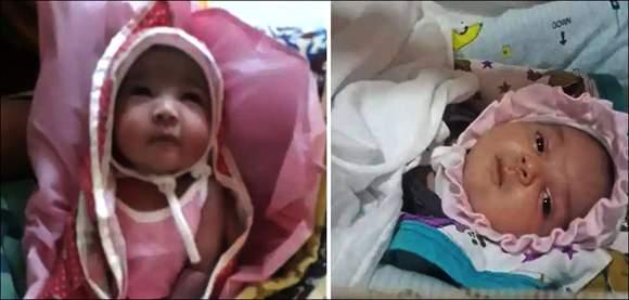 સુરતમાં 7 દિવસની બાળકીને અજીબોગરીબ રોગઃ વિશ્વનો પ્રથમ કેસ હોવાનો તબીબનો દાવો