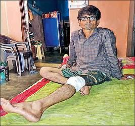 નડિયાદ શહેરના મફતલાલ મિલ વિસ્તારમાં કપિરાજનો આતંક:એક શખ્સ પર હિંસક હુમલો કરી પગ પર બચકું ભરતા અન્ય લોકોમાં ભયનો માહોલ